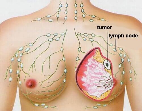 研究指出可以抗乳癌的食物