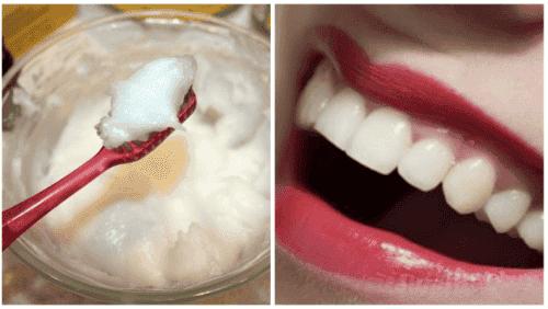 用自然療法解決口腔健康問題