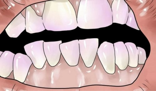 如何自然擺脫牙垢