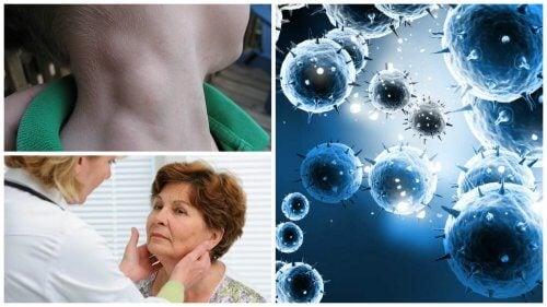 淋巴瘤:能即時發現即時治療的隱形癌症