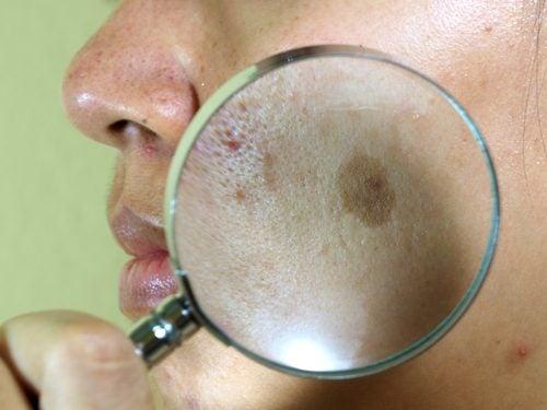 臉部曬斑的七種治療方法