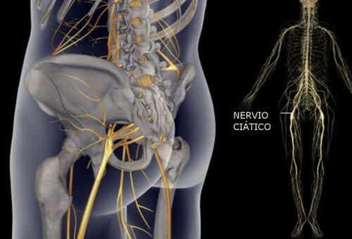 治療坐骨神經痛的簡單運動