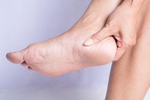 用天然方法治療腳跟骨刺