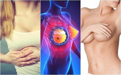 所有女性朋友都該知道的九種乳癌症狀