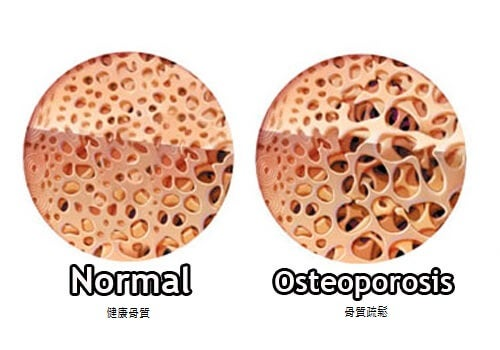 克隆氏症(葡萄糖皮質(骨質酥鬆)