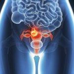 無聲的疾病–子宮內膜異位症的風險和症狀