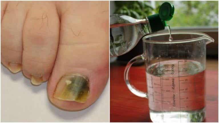 對付灰指甲的天然療法