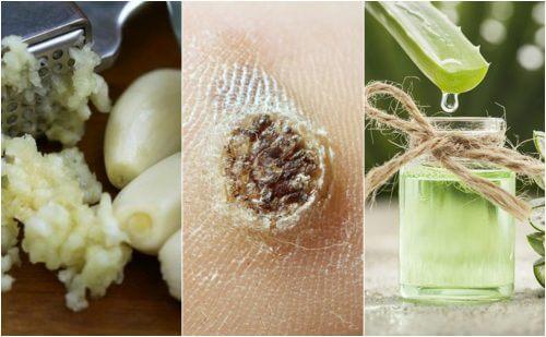 強力推薦5種天然除疣療法