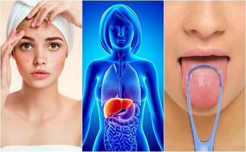肝臟出問題的7種警訊