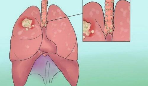 你不該忽略的 8個肺癌徵兆