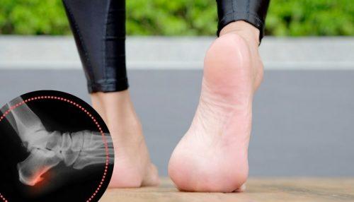 對付後腳跟骨刺的5個復健法