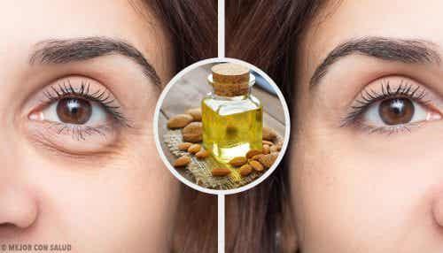 四種眼膜消除黑眼圈放鬆眼睛