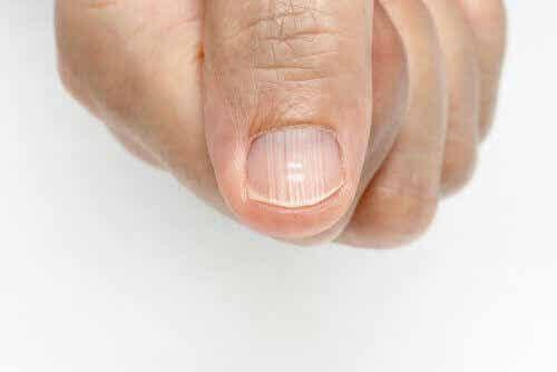 如何去除指甲上的線