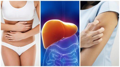 八種肝臟毒素負荷過量的症狀
