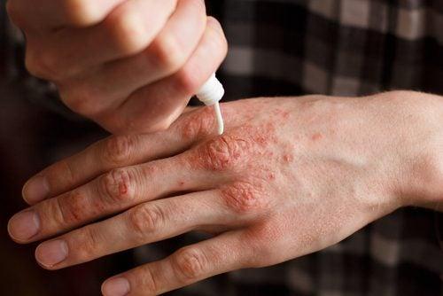 六種治療牛皮癬的天然藥膏