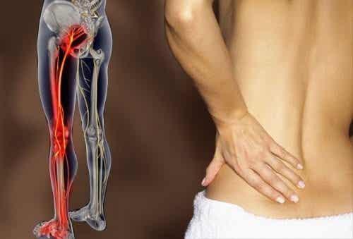 擺脫坐骨神經痛的六種簡單運動
