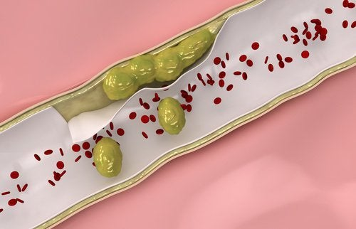 九種可自然淨化動脈的食物