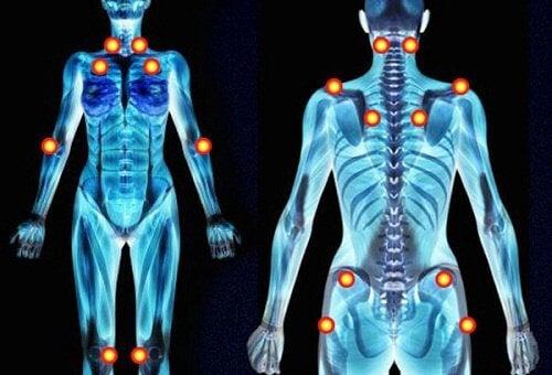 纖維肌痛症的五種初期警示病兆