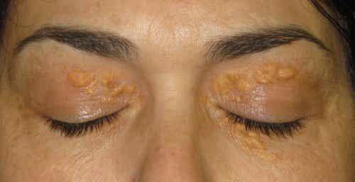 黃斑瘤:眼睛周圍的白點