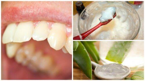 5個對付牙菌斑的天然療法