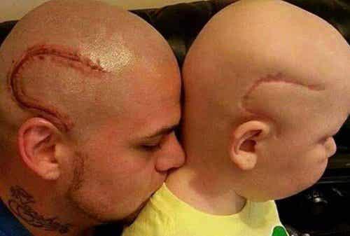 """""""現在我們一樣了"""",刺了兒子癌症手術疤痕刺青的父親如是說"""