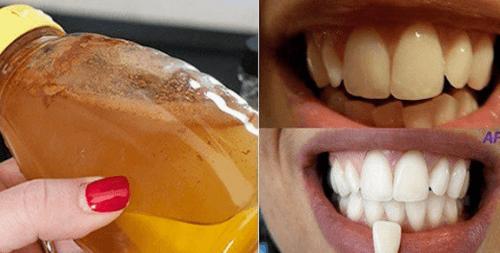 用純天然成分來美白牙齒