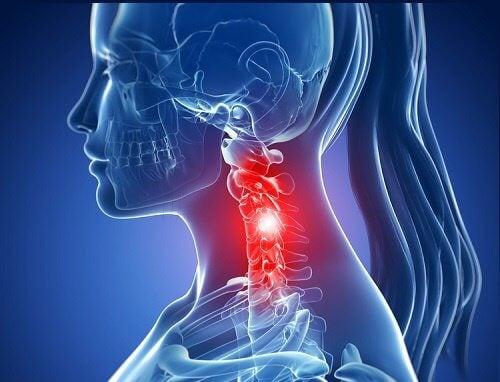 減輕頸部疼痛的六種簡單運動