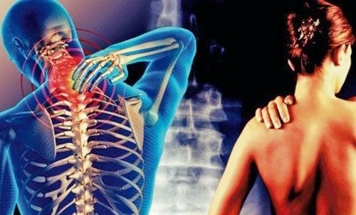 頸臂症候群:從頸部開始一直到手臂的疼痛