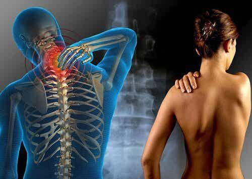 你必須了解的纖維肌痛症