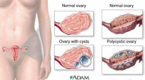 女性需知的卵巢囊腫九大事實