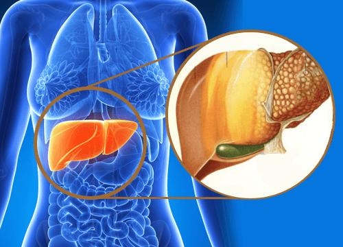 九大跡象顯示毒素正在你的肝臟裡聚積