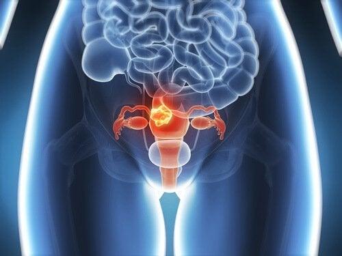 你該知道的六種子宮頸癌症狀