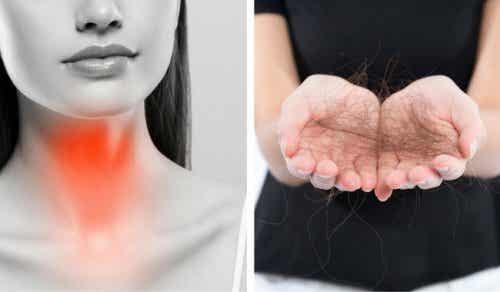 八招對抗甲狀腺引起的掉髮現象