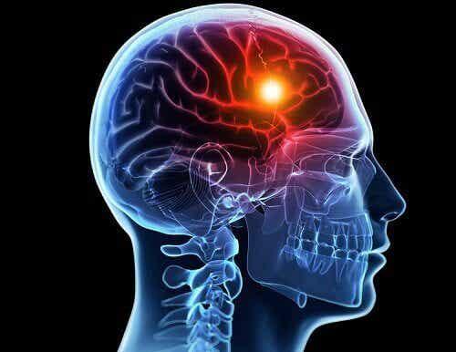 腦中風前身體發出的八種警訊