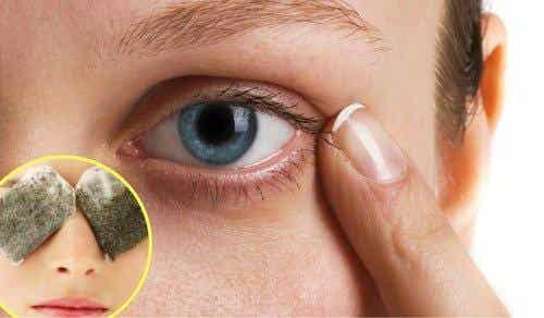 五個消除黑眼圈的自然療法