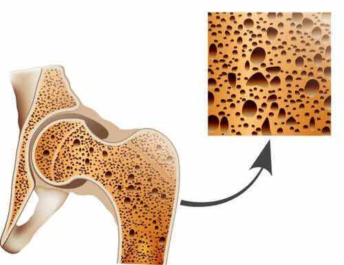 對抗骨質疏鬆症的自然療法