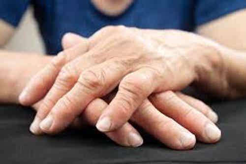 治療關節炎的新方法