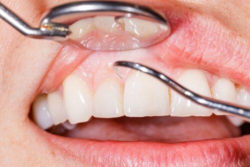七種緩解牙齦腫脹的自然療法