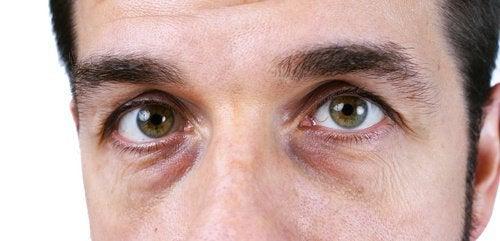 消除黑眼圈的四種自然療法