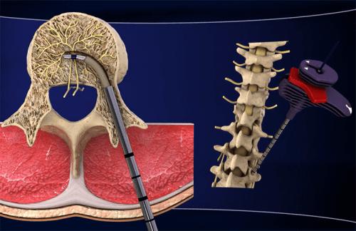 慢性腰痛的新療法