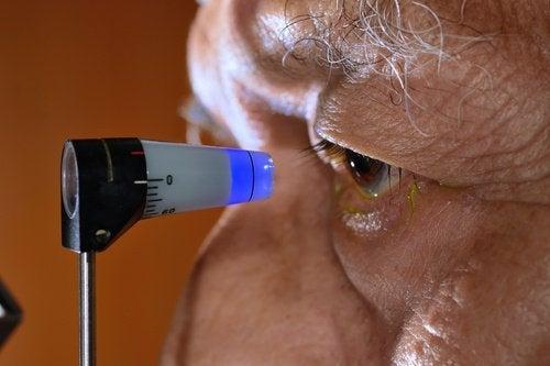 用自然方法預防青光眼