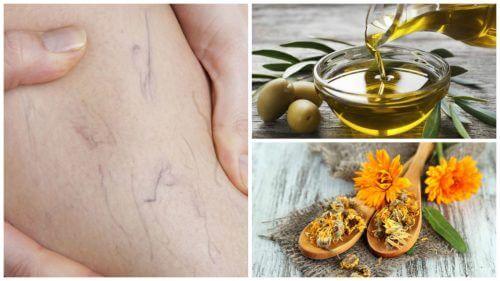 用橄欖油金盞花療法擺脫靜脈曲張