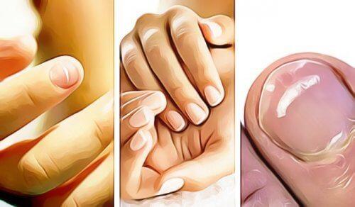 五種徵兆指甲顯示健康問題