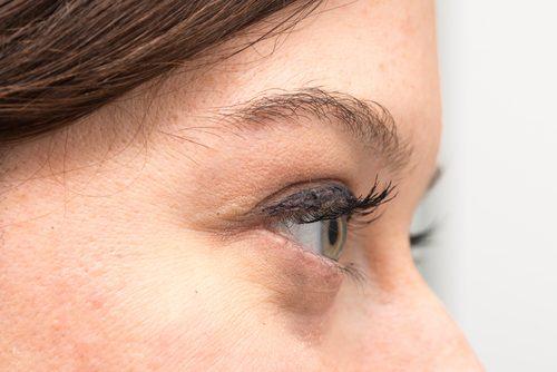 眼袋如何形成及如何用天然方式消除