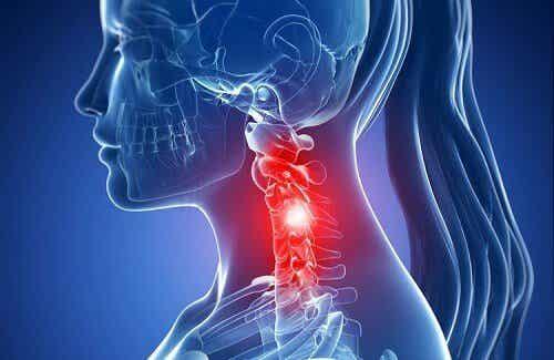 頸椎退化的症狀和自然療法