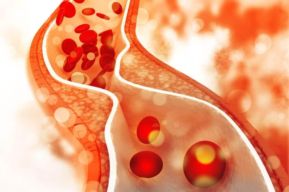 用健康飲食控制壞膽固醇