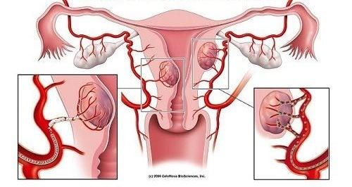 子宮肌瘤的七項警訊