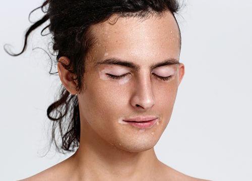白斑症臉部