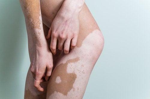 何謂白斑症?成因與治療