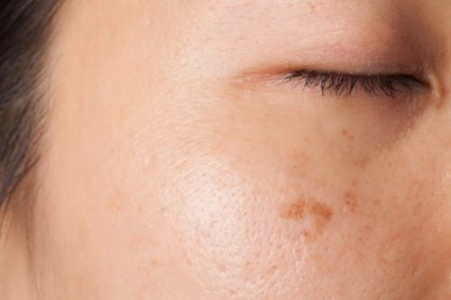 皮膚-斑點